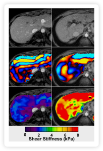 MRI image on right shows liver stiffness.