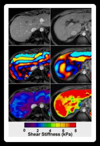 MRI image on right shows liver stiffness.