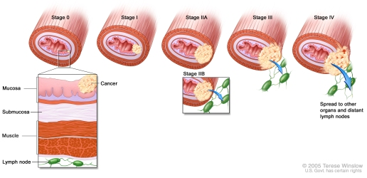breast cancer stages